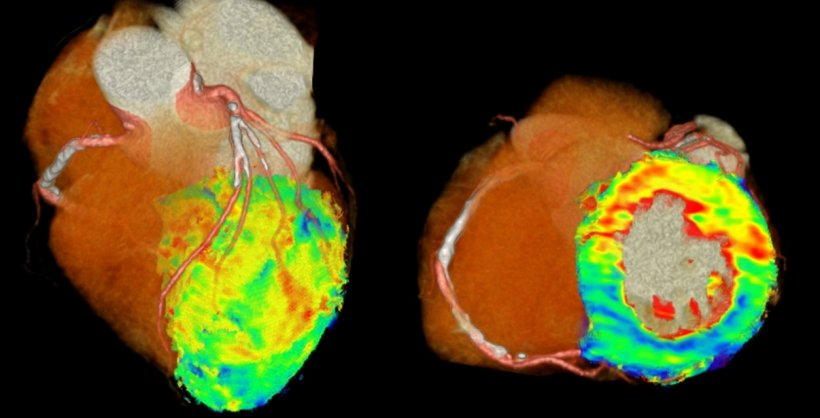 Figure 1: 4D-CT perfusion images of the heart