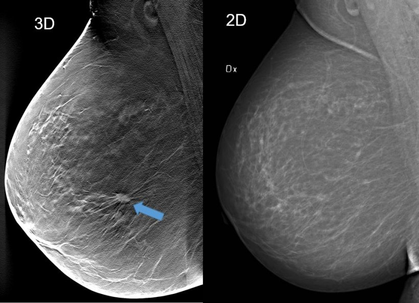 3d tomosynthesis and 2d mammography imaging of a breast