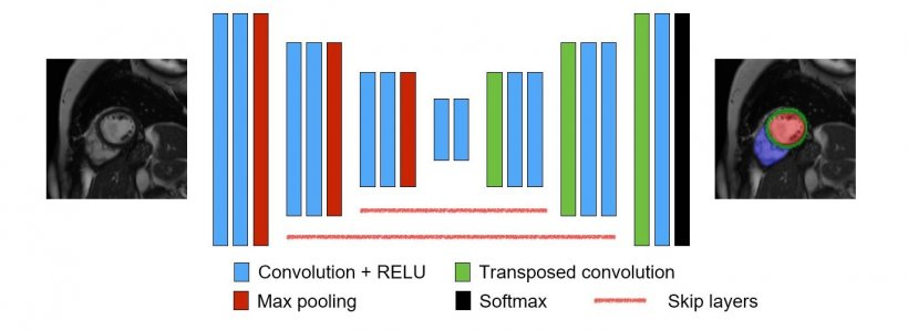 Convolutional Neural Network for Image Segmentation: AI is a tool for the...