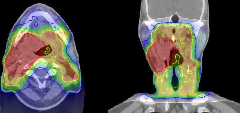 Irradiation plan of head and neck cancer