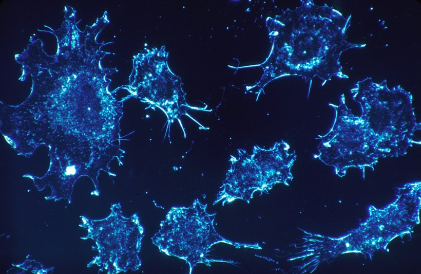 Discovering cancer cell mutations with optimized technologies