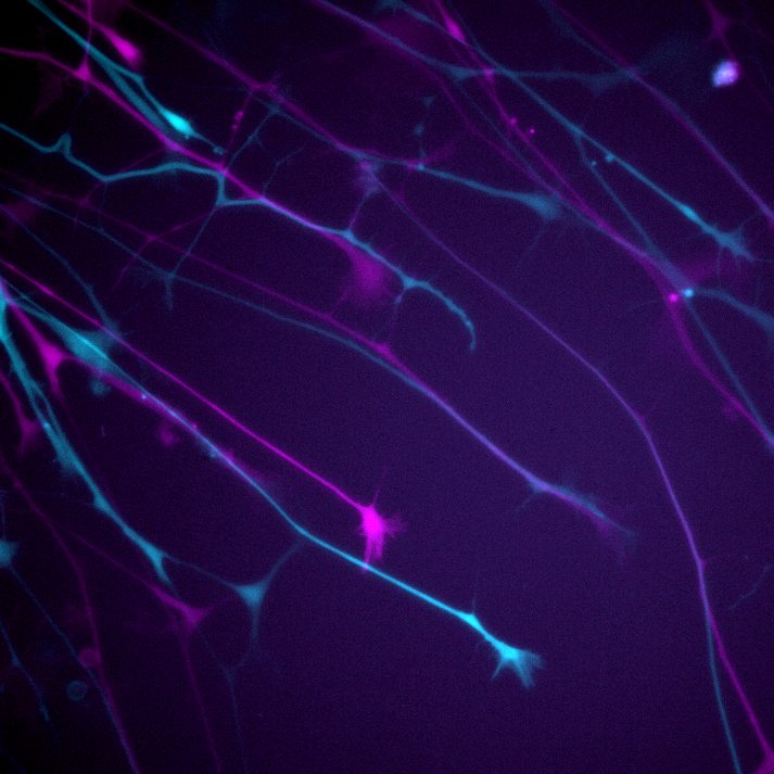 Neurite outgrowth assay of neurons expressing GFP. The first and last time...