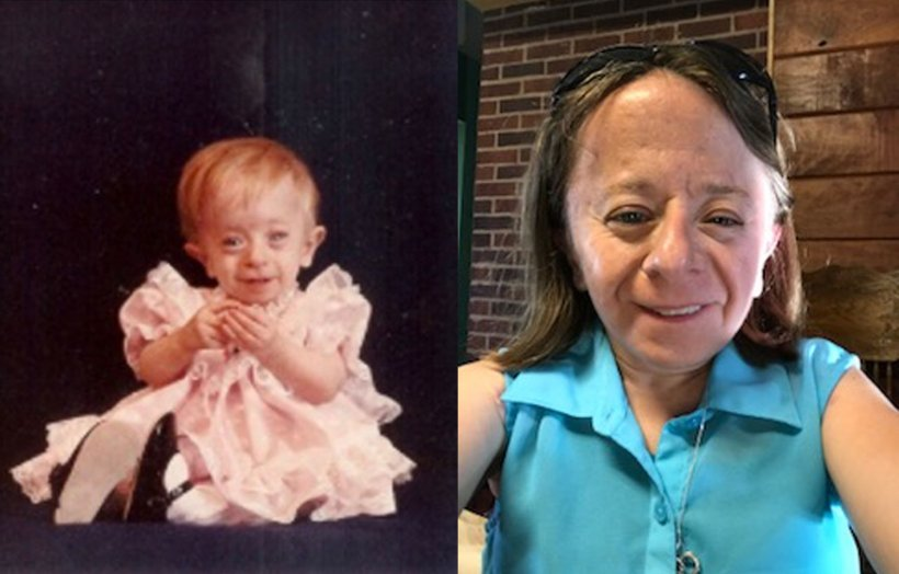 Monica Zaring, who has Saul-Wilson syndrome, as a child and today.