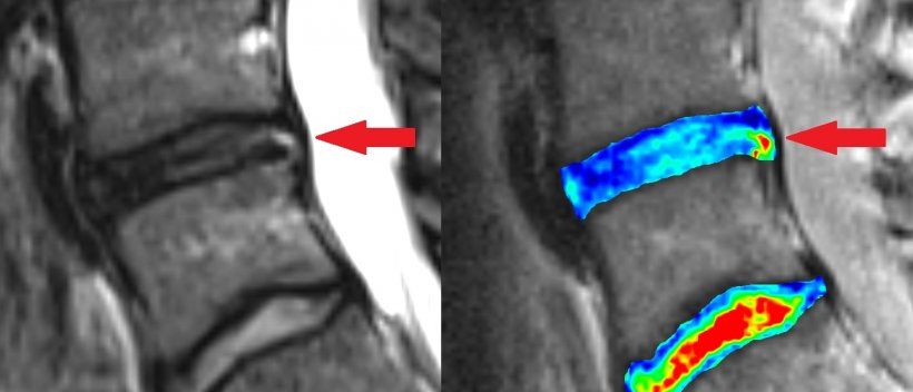 Anatomical and biochemical imaging (in colour) of worn out lumbar disc