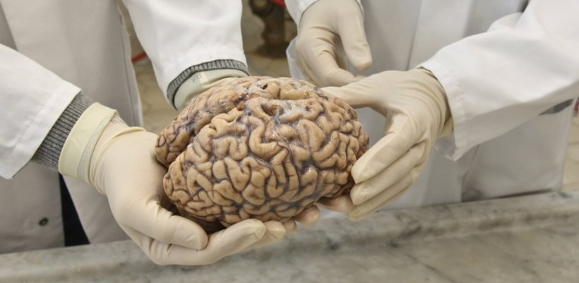 gloved hands holding human brain