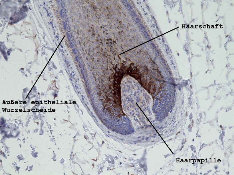 hair growing inside the scalp
