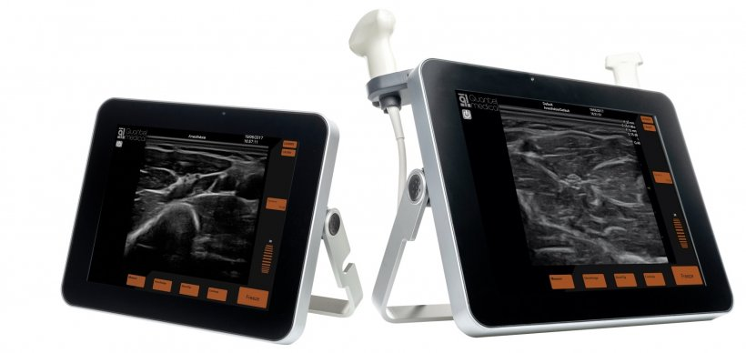 New mobile ultrasound units
