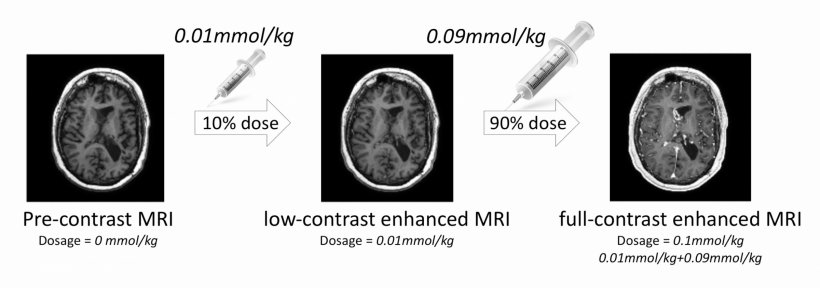 Imaging protocol used with 3 different MR series at different contrast doses.