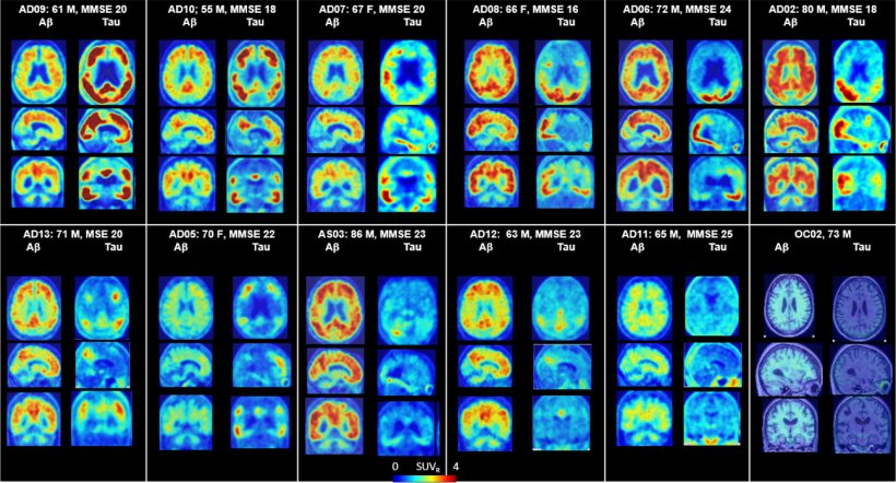 PET scans of human brain