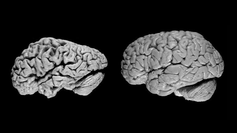 The brain of a person with Alzheimer's (left) compared with the brain of a...