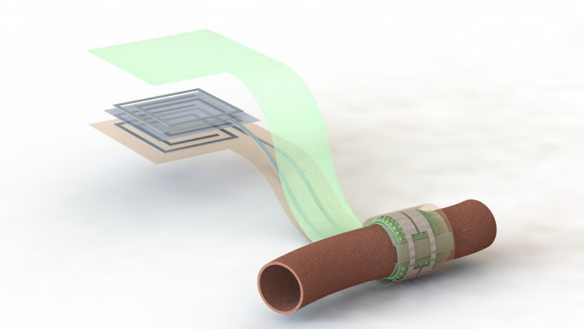 Artist's depiction of the biodegradable pressure sensor wrapped around a...