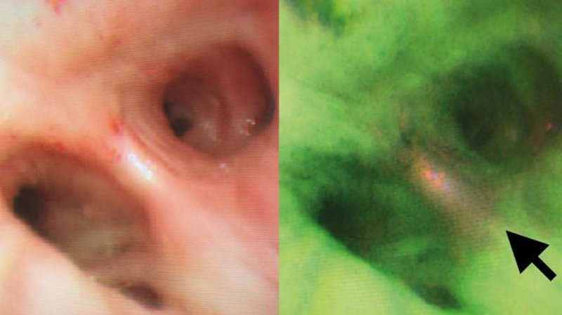 Precancerous lung lesion, viewed by white light bronchoscopy (left) and...