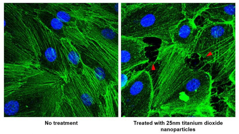 When blood vessel cells (left) are treated with a short exposure of titanium...