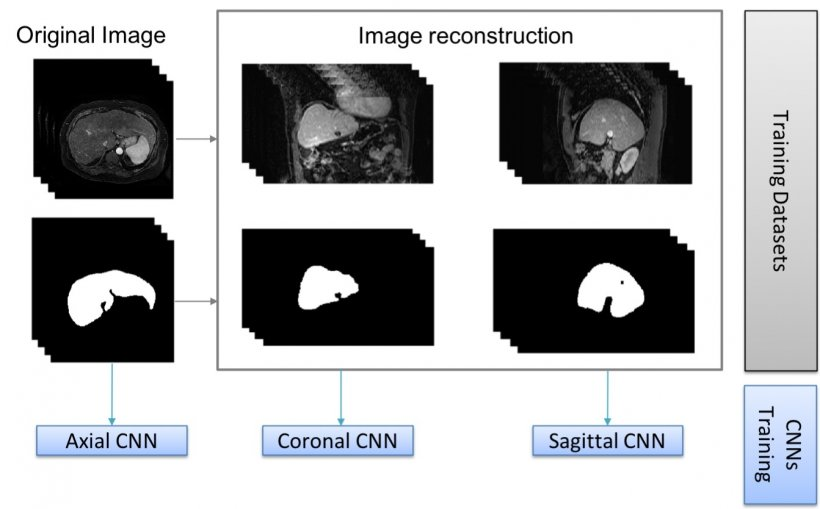 Using combined information of transversal, sagittal or coronal images to...