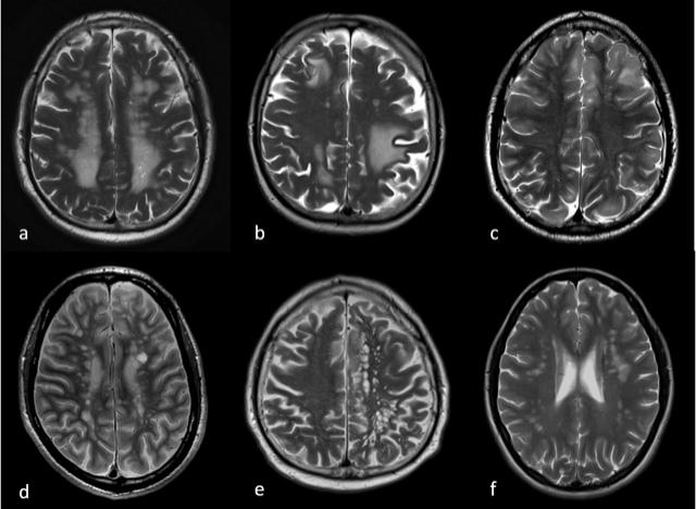 Sarkoidose Gehirn
