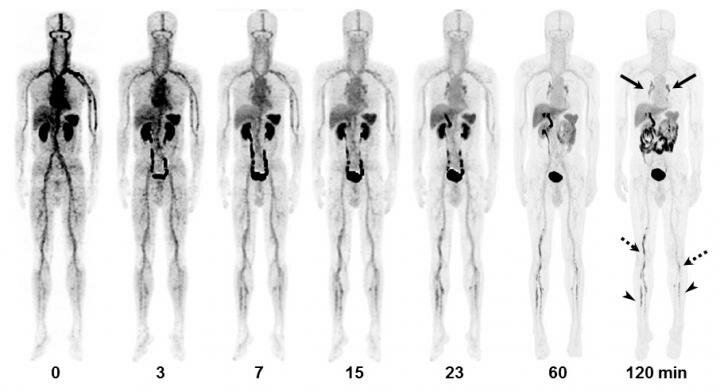 18F-GP1 PET/CT and CT images of 55-y-old man with DVT and PE. Anterior...