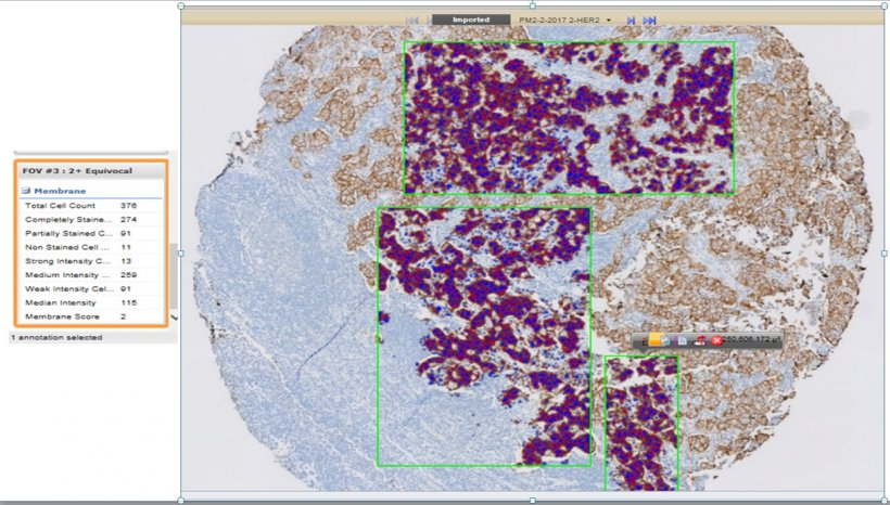 A screenshot of quantitative image analysis (QIA) of a breast cancer biomarker...
