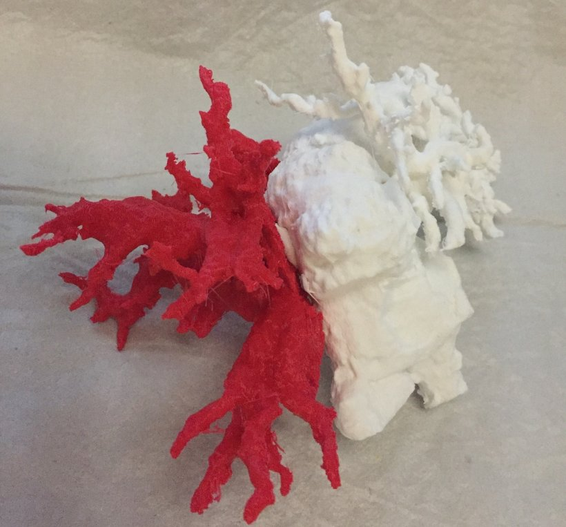 3D-printed visualization of the left and right massively dilated biliary system...