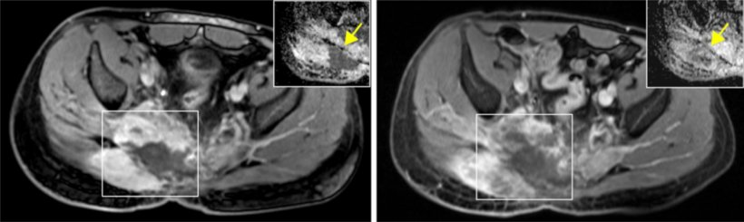 Left: patient with advanced-stage chordoma; right: cessation of tumor growth...