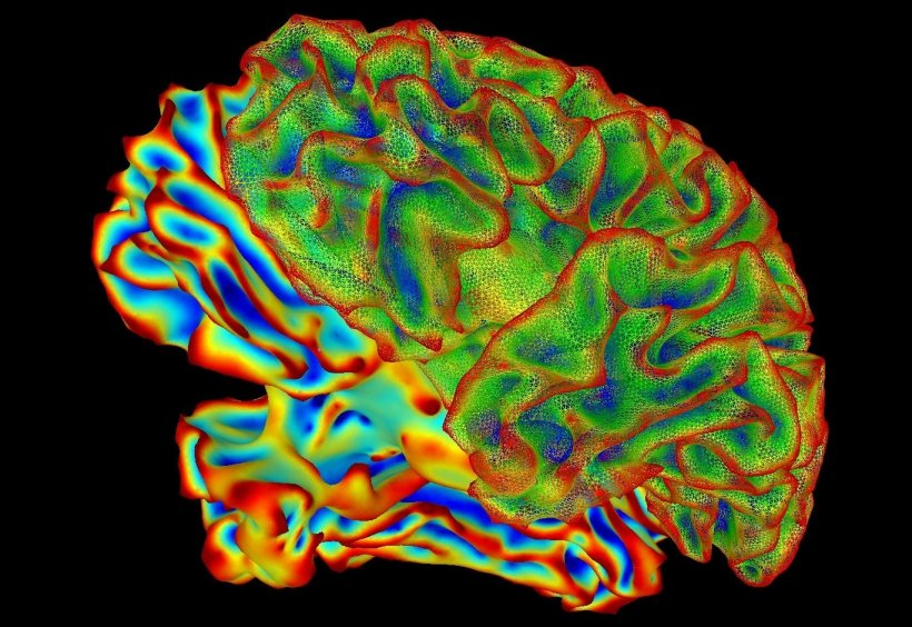 A multi-color image of the human brain.