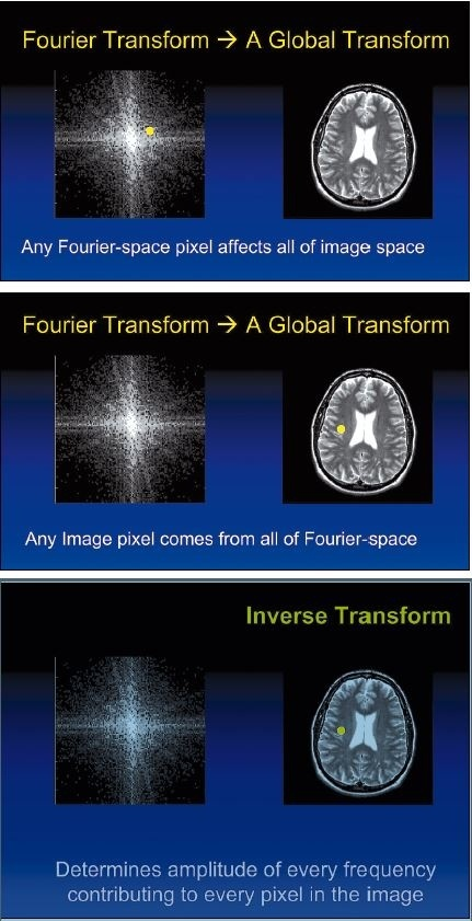 The Fourier transform is a mathematical method to quantitate patterns in an...