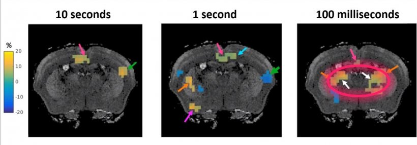 Faster than fMRI: Seeing brain activity in 'almost real time'