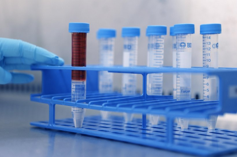blue rack containing test tubes, one filled with blood