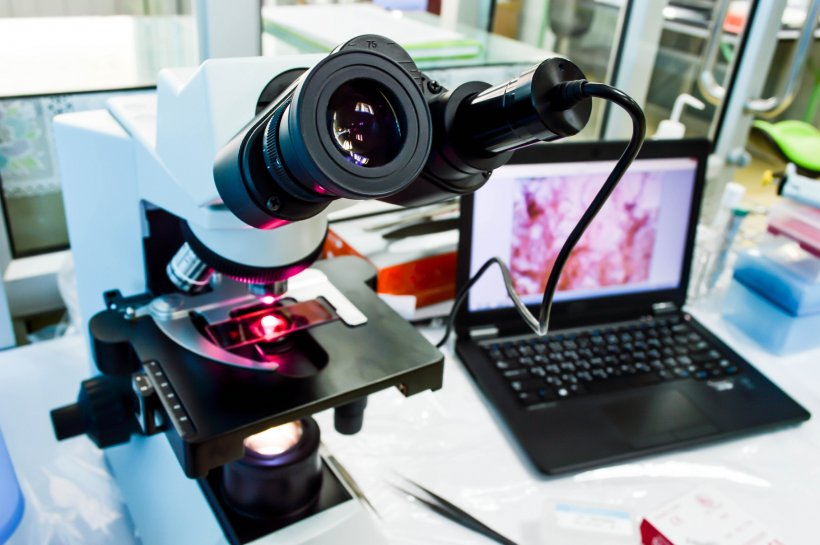 microscope connected to laptop with digital pathology slide