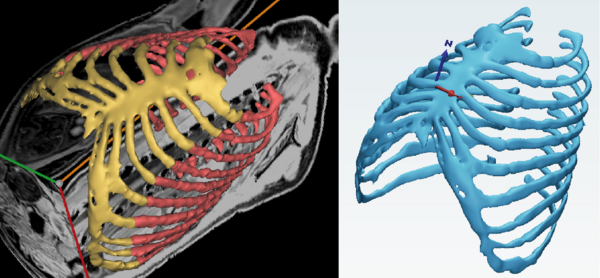 Segmentation of the MRI image of the rib cage (red) and cartilage structure...