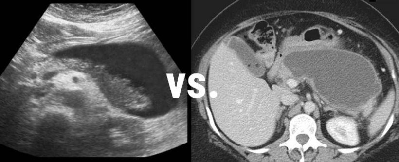 CT and ultrasound images