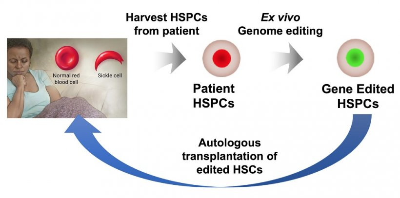 An illustration shows the process by which a patients own hematopoietic stem...