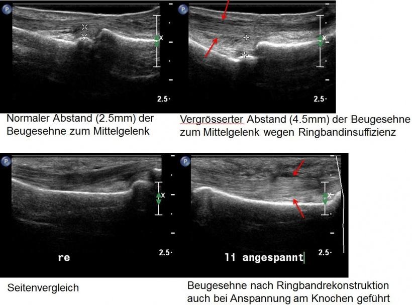 Das dritte Auge – Ultraschall in der Handchirurgie auf healthcare-in ...