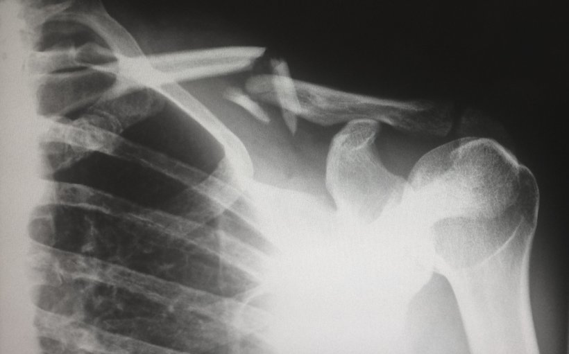 x-ray image of shoulder