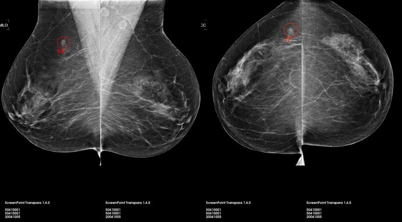 Transpara, the AI software for 2-D and 3-D mammography, developed at...