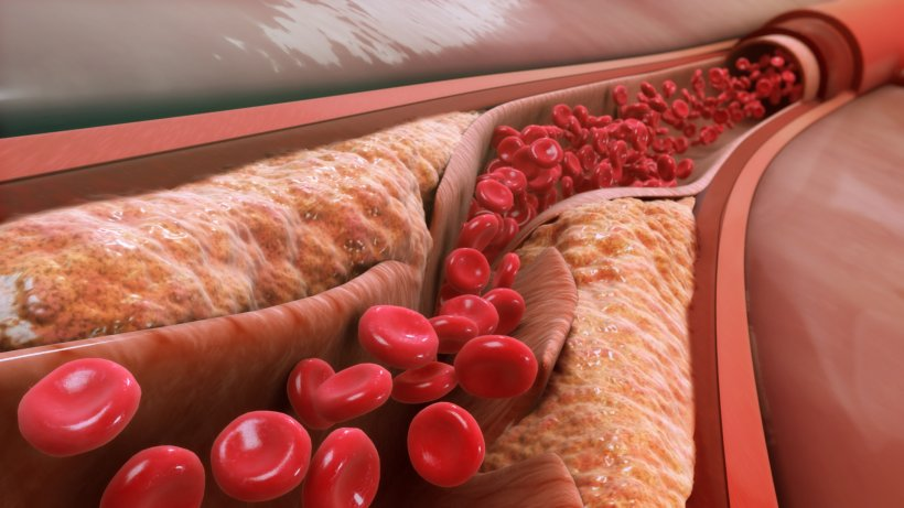 Giving patients a say in vascular conditions research