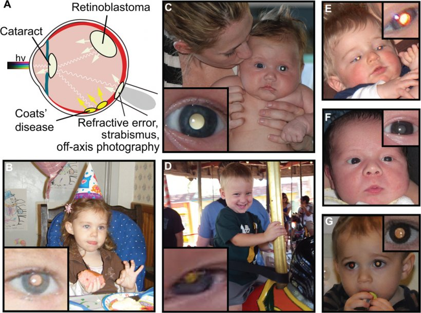 Examples of pathologic and physiologic leukocoria detected in childhood...