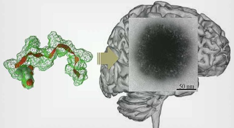 Self-assembly of a peptide to 'hairy-like particles' that target the brain...