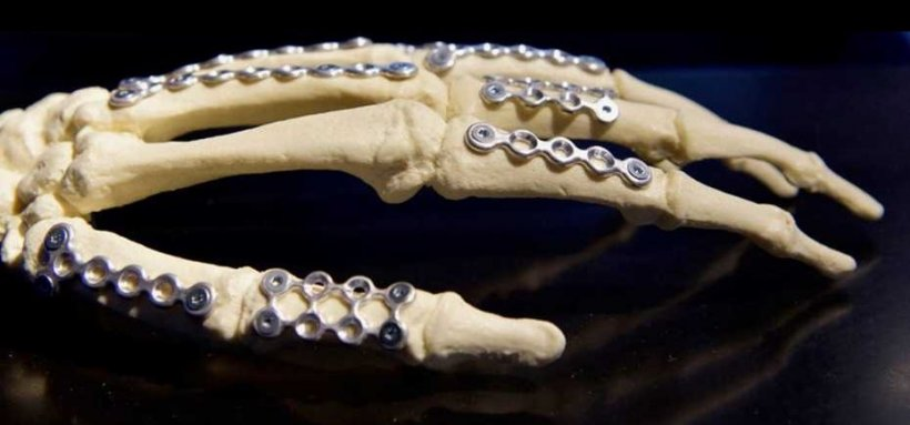 model of human hand skeleton with metal implants