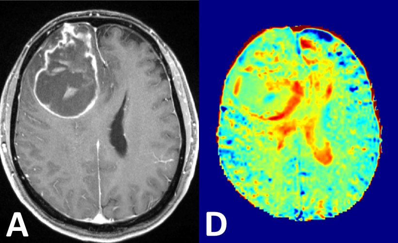 Left: brain tumour in conventional contrast-enhanced MRI;  Right: glucose MRI...