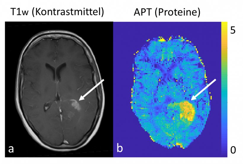 Left: conventional morphological contrast-enhanced image of a brain tumour at 3...