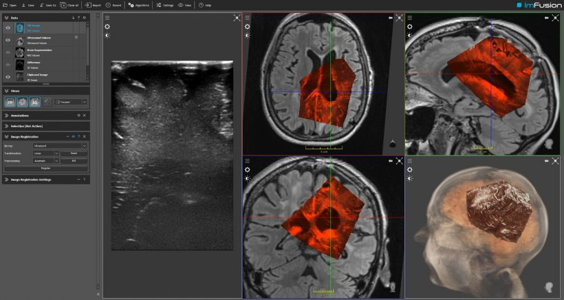 ImFusion uses deep learning to turn 2-D ultrasound data into 3-D images