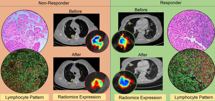 An illustration of the differences in CT radiomic patterns before and after...