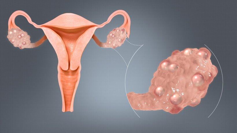 Better treatment for women with PCOS