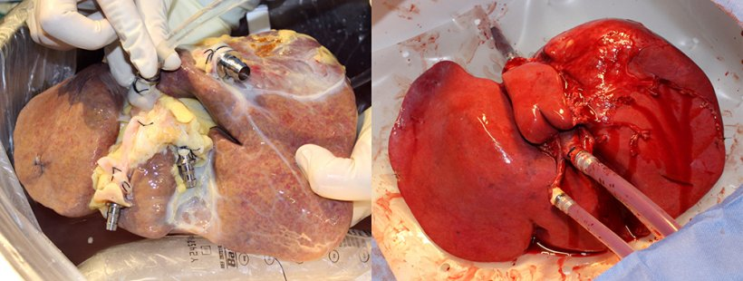 On the left a non-perfused liver, on the right a liver treated with the new...
