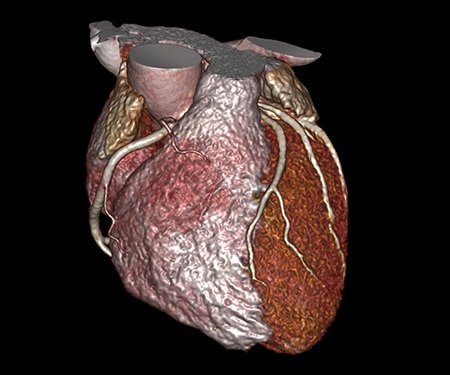 Example: Cardiovascular Imaging