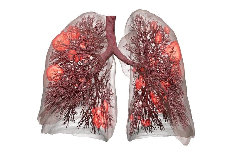 Utilizing the data of a CT lung scan, the software uses artificial intelligence...