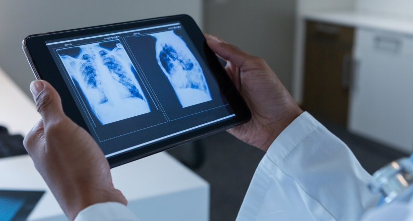 AI auto-scans lung X-rays for coronavirus