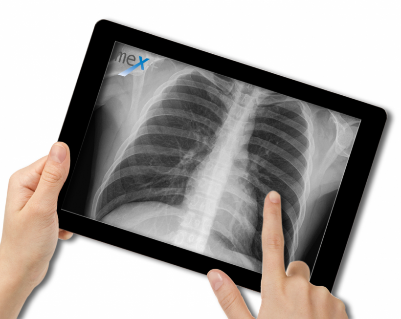 Image of a tablet with an x-ray image of the ribcage