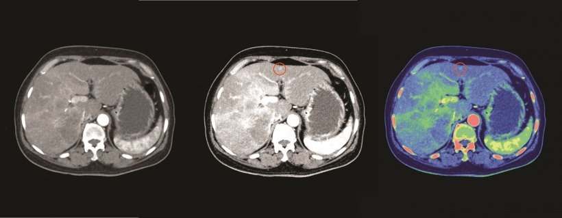 Breast cancer metastasized to liver: Both 45 keV (center) and MD iodine (right)...