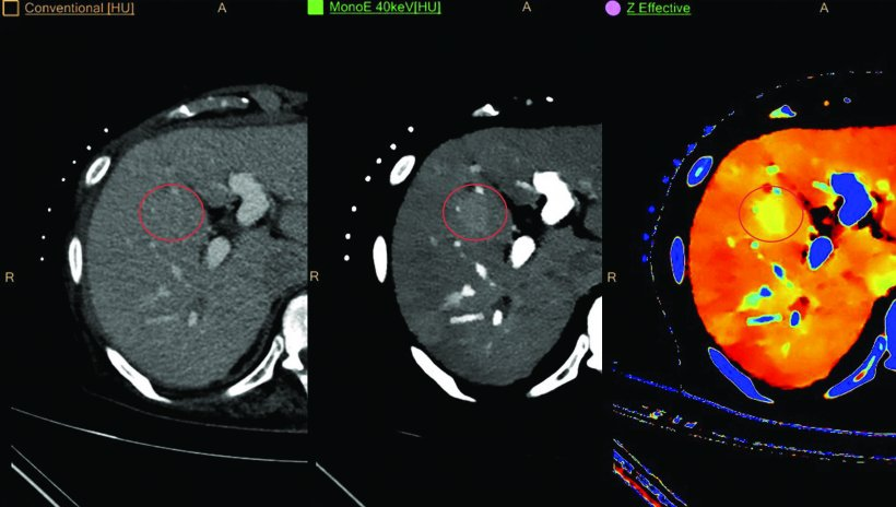 Philips IQon Spectral CT delivers multiple layers of retrospective data in a...